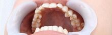 歯フェチLABO
